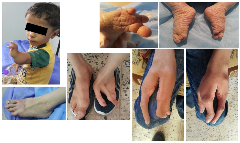 Here's another illustration, of hand and foot abnormalities in children in Nasiriyah, and in the ancient city of Ur, near the U.S. base: